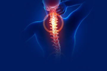 Neck Injuries Explained