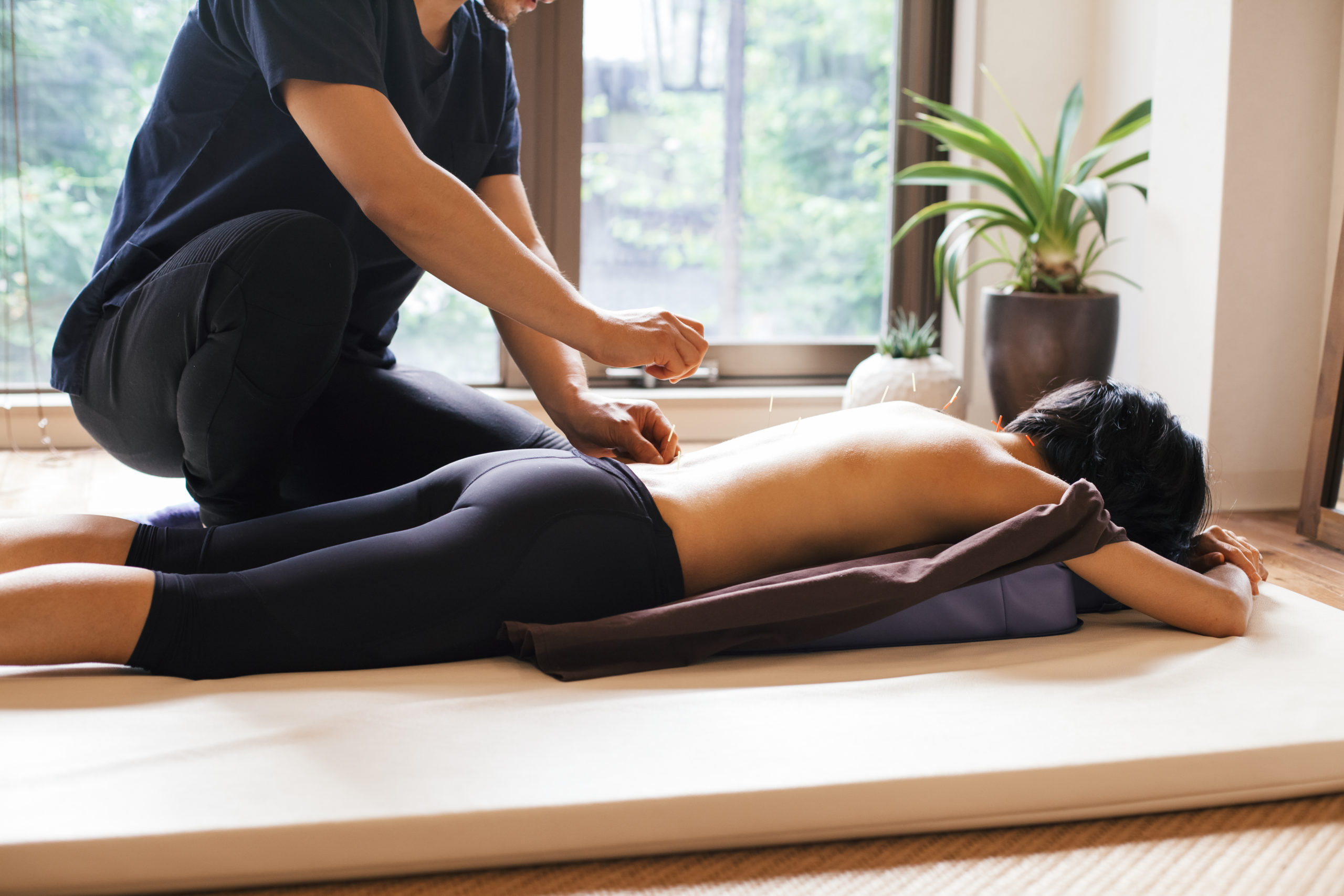 Acupuncture session in a Japanese medical study